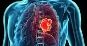 exame sangue identifica cancer pulmao